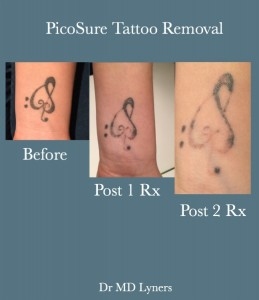 UberSkin picosure tattoo removal, Derry, Northern Ireland