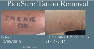 UberSkin PicoSure safe laser tattoo removal, Derry, Northern Ireland