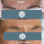 Eyebrow tattoo removal, semi permanent make up removal, eyebrow tattoo embroidery removal, Derry, Londonderry, Northern Ireland
