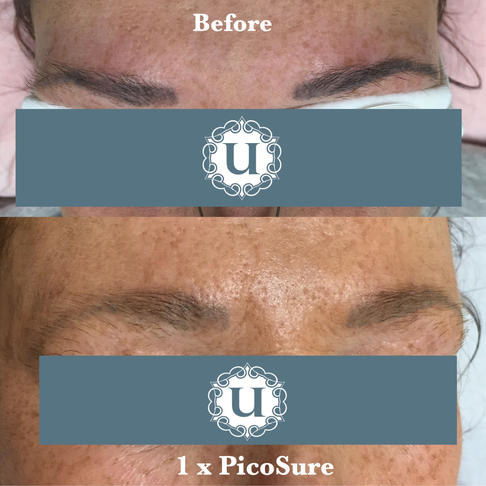 Tattoo removal fading before cover up with picosure for Eyebrows tattoo removal laser
