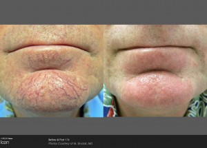 Thread vein removal, spider veins on face, laser clinic Derry