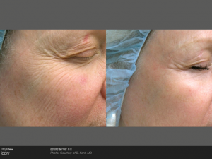 Anti wrinkle treatment derry, UberSkin, threeforme, laser clinic derry, remove fine lines and wrinkles
