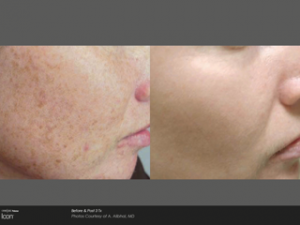 Pigmentation on face, anti-wrinkle treatment derry, laser clinic derry