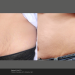 Stretch mark removal at UberSkin laser clinic, Derry, Nothern Ireland