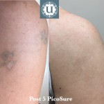 Resistant green ink tattoos respond well to PicoSure laser treatment, laser clinic in Derry