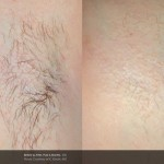 Laser Hair Removal Derry, UberSkin Laser Clinic Derry