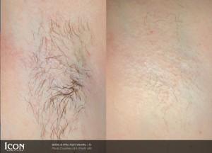 Laser Hair Removal Derry, UberSkin Laser Clinic Derry