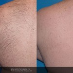 Laser Hair Removal derry, uberSkin Laser clinic Derry,