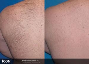 Laser Hair Removal derry, uberSkin Laser clinic Derry,