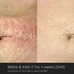Stretch mrk removal at UberSkin laser clinic Derry