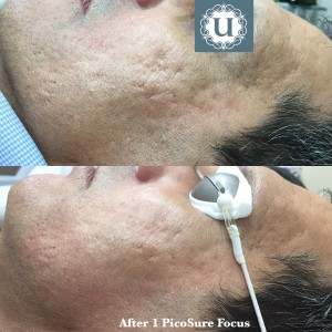 Acne scar treatment Northern Ireland, at UberSkin, Advanced PicoSure Focus Treatment
