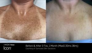 ThreeForMe, pigmentation removal @UberSkin