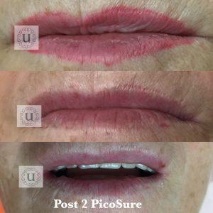 Semi permanent make up removal at UberSkin