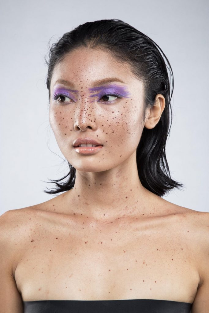 Pigmentation treatment at UberSkin Laser Clinic