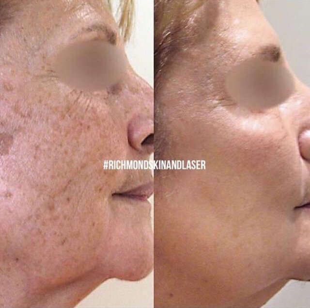 Pigmentation Treatment with PicoSure
