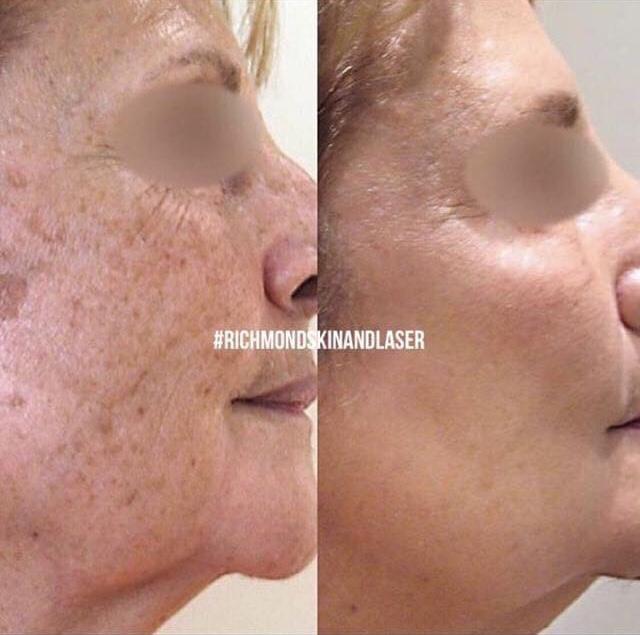 Pigmentation Treatment with PicoSure