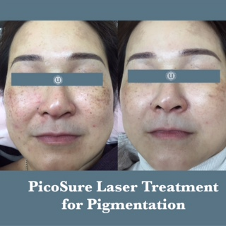 Sun damage and pigmentation treated at UberSkin laser Clinic